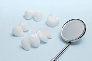Metal-Free Dental Restorations