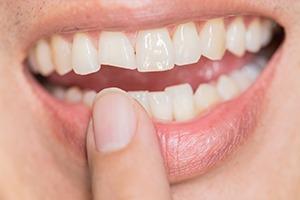 Chipped/Broken Teeth