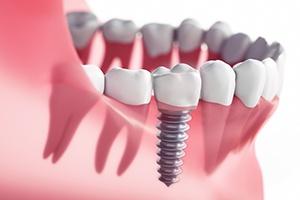 Dental Checkups & Teeth Cleanings